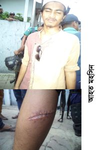 Injured  Worker Mohsin