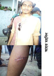 Injured  Worker Mohsin