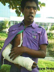 Injured Worker Shipon